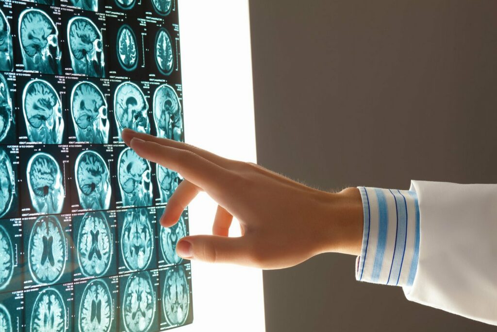 Close-up image of doctor's hand pointing at x-ray results of brain