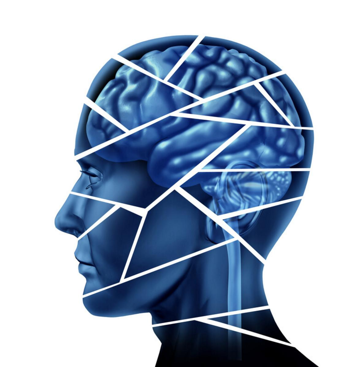 Blue head image with brain outline, cut into pieces representing brain injury